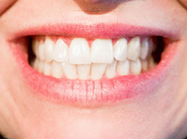 三千起的钛合金烤瓷牙不如做即刻种植牙