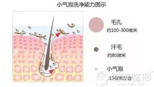 小气泡护肤的原理图
