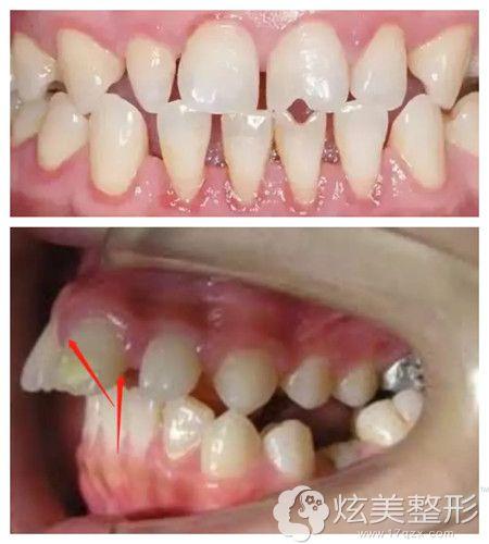 牙齿小且有牙齿突起情况导致牙缝大