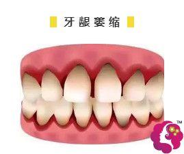 牙龈萎缩造成的牙缝大