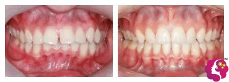 牙齿矫正使牙缝缩小效果对比