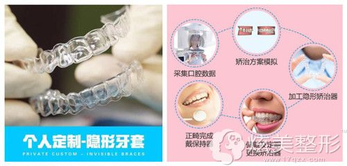 全隐形矫正能够让牙缝在无形中缩小