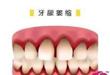 30岁牙齿稀疏牙缝大怎么办?用小妙招不如早早做牙齿矫正