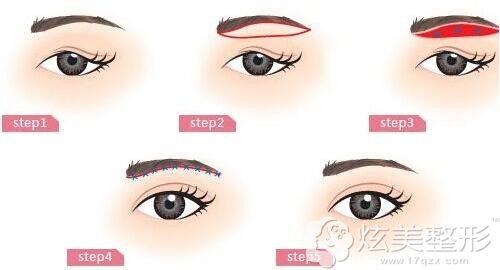 假体垫眉弓手术步骤简易图
