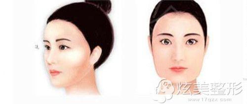 眉骨塌陷所呈现的面部效果