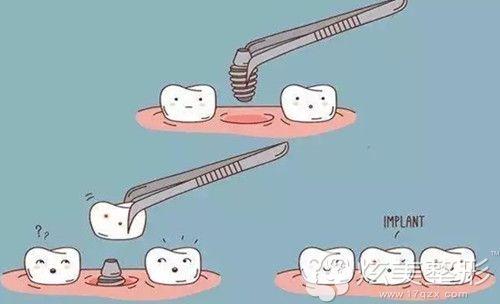 种植牙的手术原理