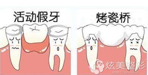 镶牙的两种假牙类型