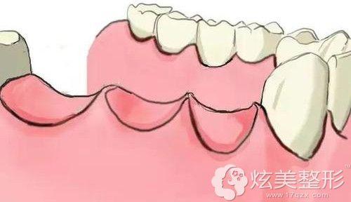 小编掉了3颗大牙后的牙槽骨