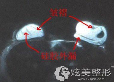 假体裂开或漏液都有可能导致胸部凹凸不平