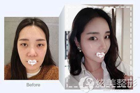韩国玉芭做隆鼻失败修复手术前后对比