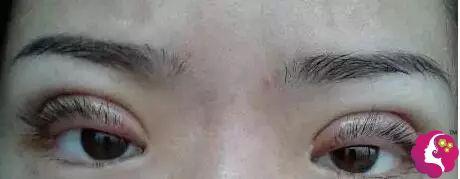 两次双眼皮手术仍然失败急求修复