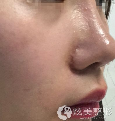 外切缩鼻翼疤痕增生图