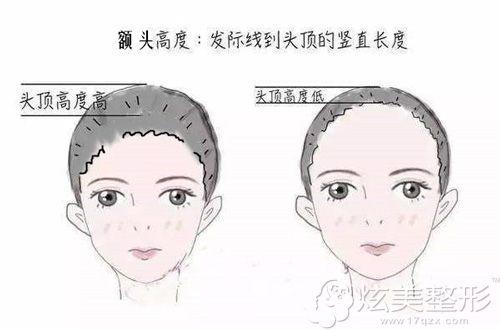 种植发际线改善额头高