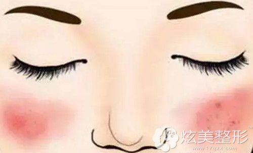 敏感肌大部分会有红血丝症状