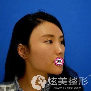 做眼鼻整形术前是多层眼皮和塌鼻子