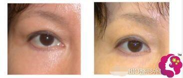 bio医生做的眼角修复前后对比
