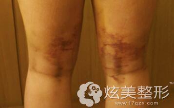 吸脂恢复过程中皮肤可能出现的反应
