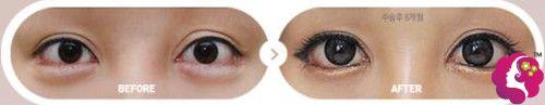 双眼皮失败造成不对称做眼综合前后对比