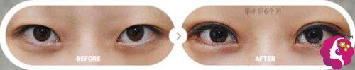 内双眼做眼综合整形效果