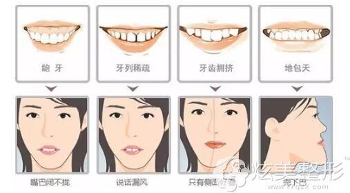 成年人的各种牙齿问题