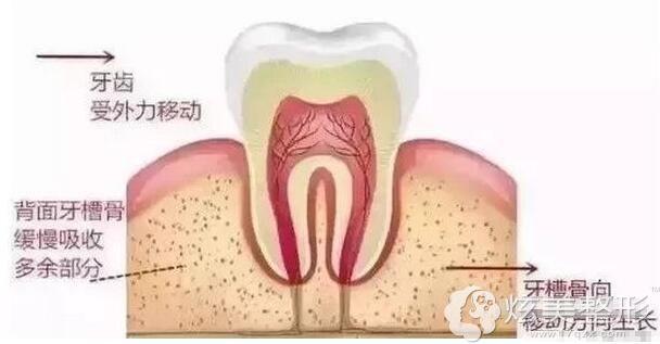 牙齿矫正的原理图
