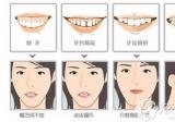 网上说成年以后千万别整牙,想问问35岁了箍牙会不会反弹