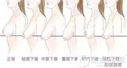 乳房下垂呈现的不同程度