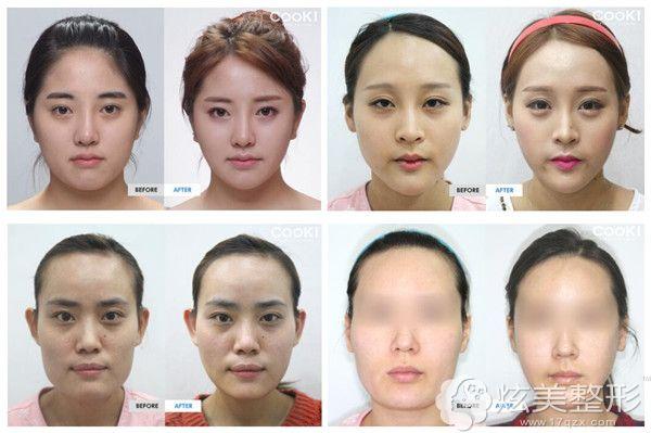 韩国cooki面部轮廓对比案例