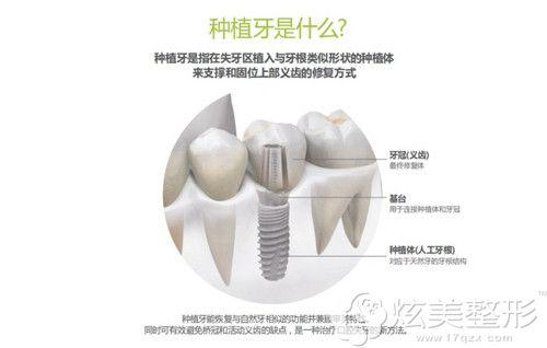 种植牙是什么呢