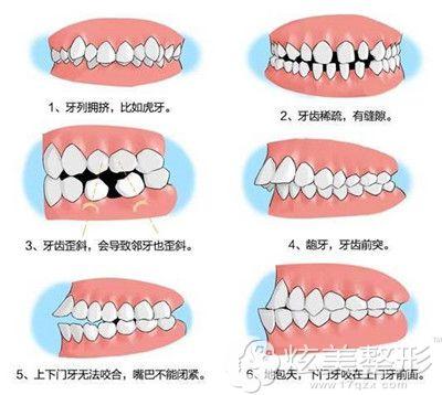 适合牙齿矫正的几种类型