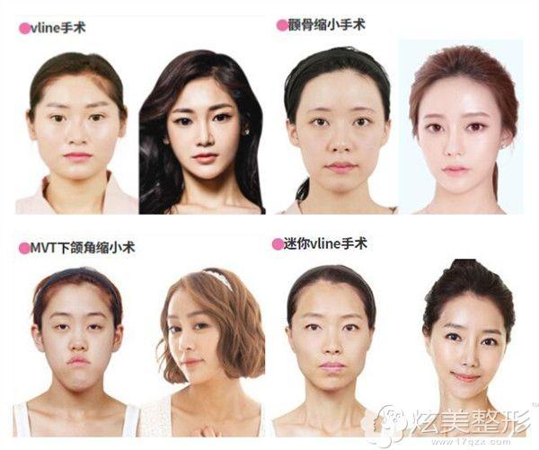 韩国ID面部轮廓整形案例对比照