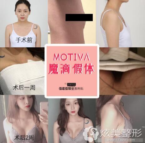 韩国佰诺佰琪:10万可做MOTIVE高端假体隆胸