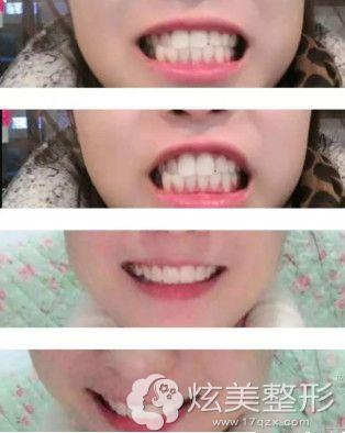 下颌牙列拥挤用仿生冠矫正效果