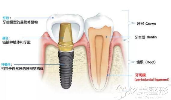 种植牙的使用寿命是多方面影响的