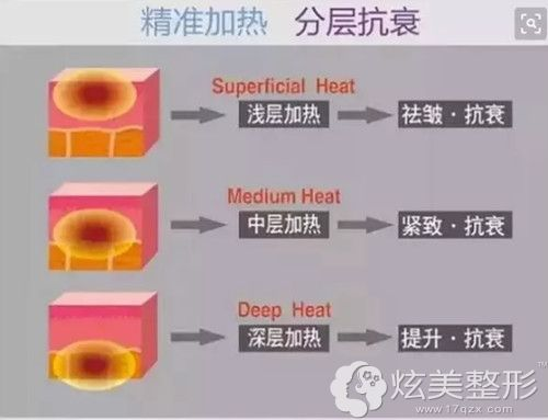 热拉提手术是分层加热除皱