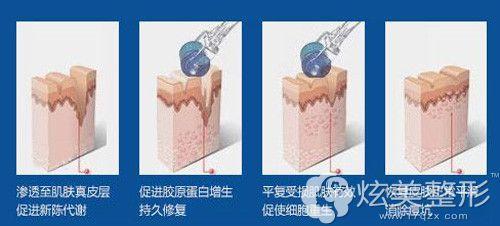 微针治疗草莓鼻的手术示意图