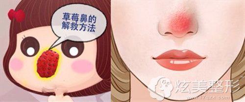 草莓鼻和酒槽鼻呈现的效果
