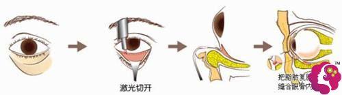 激光去眼袋手术步骤示意图