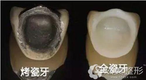 烤瓷牙和全瓷牙的美观度对比