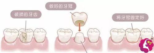 美容冠改善门牙外凸的手术原理