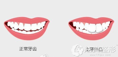 正常牙齿和上牙外凸