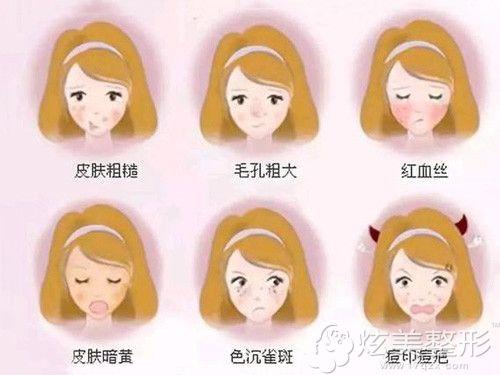 适合做光子嫩肤的皮肤类型
