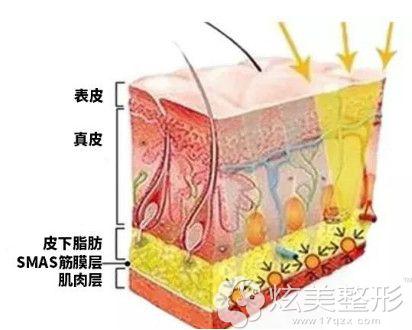 深蓝射频、热玛吉和热提拉作用的皮肤层不同