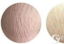 你以为黄金微针只能去痘?其实对腿上的红色膨胀纹也有效