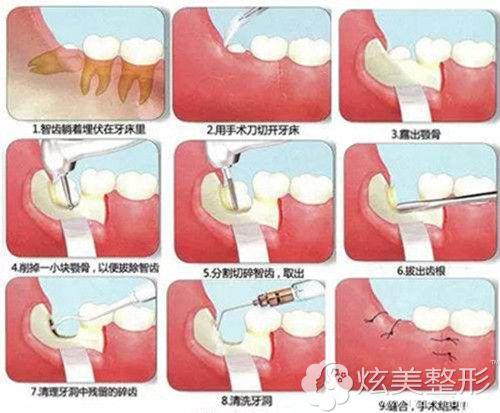 拔智齿的手术原理图
