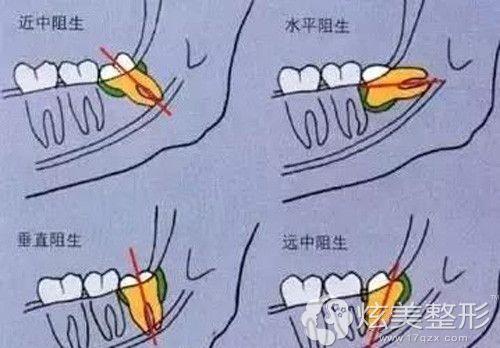 四种阻生智齿的生长情况