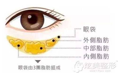 眼袋在眼下出现的部位