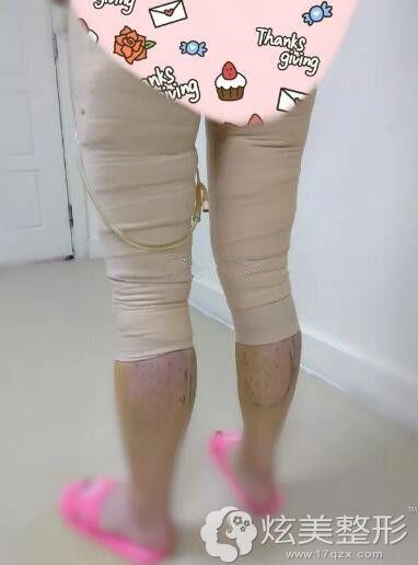 刚做完大腿内外侧吸脂穿着塑身衣