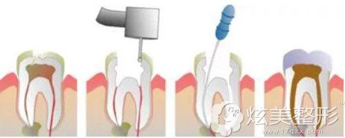牙齿做根管治疗