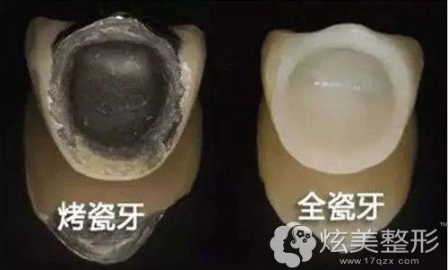 全瓷牙和烤瓷牙材质不同